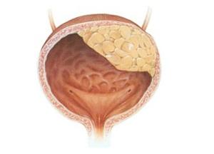методы лечения рака мочевого пузыря у женщин