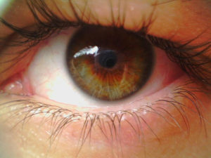 Дистрофия сетчатки глаза