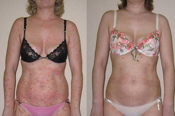 До и после лечения псориаза методом ПУВА-терапии