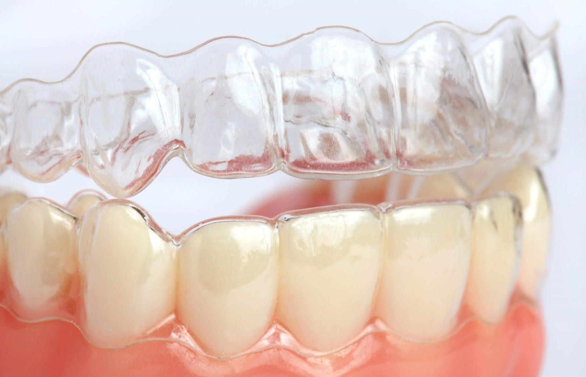 Исправление прикуса капами для зубов. Или чем хороши элайнеры