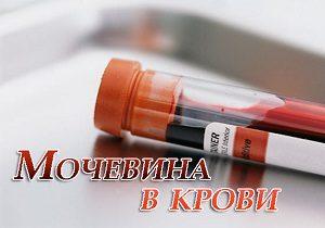 причины повышенной мочевины в крови