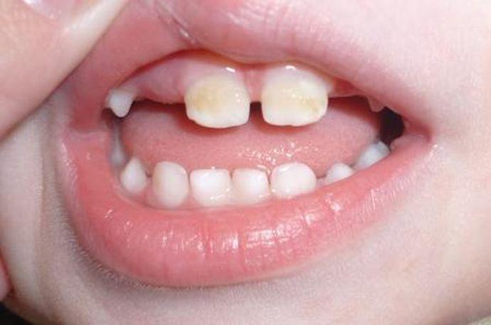 Разберемся, почему у детей чернеют молочные зубы кроется ли тут опасность?