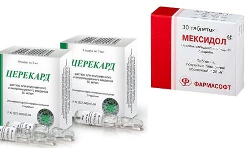 Церекард и Мексидол используют для лечения неврологических заболеваний