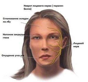 неврит на лице
