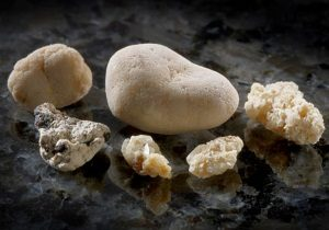 удаление камней из почек
