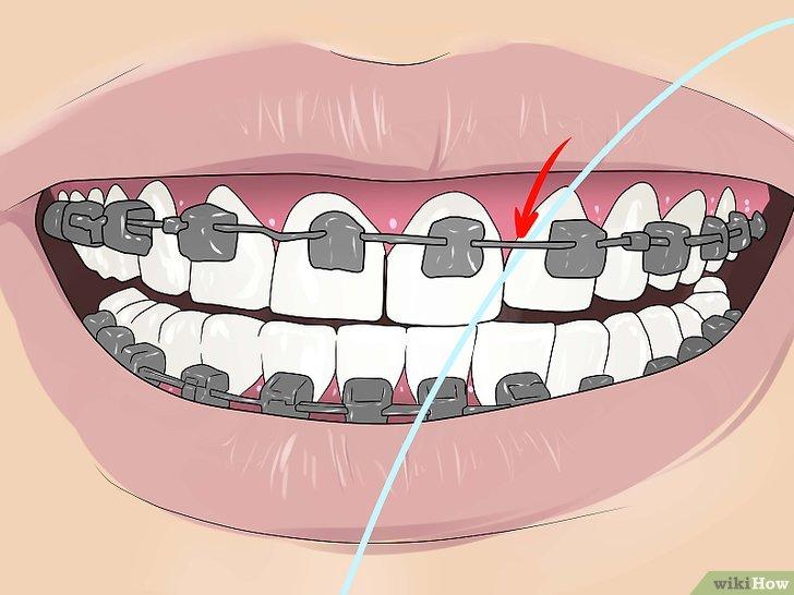 Как пользоваться зубной нитью при брекетах, чтобы не навредить