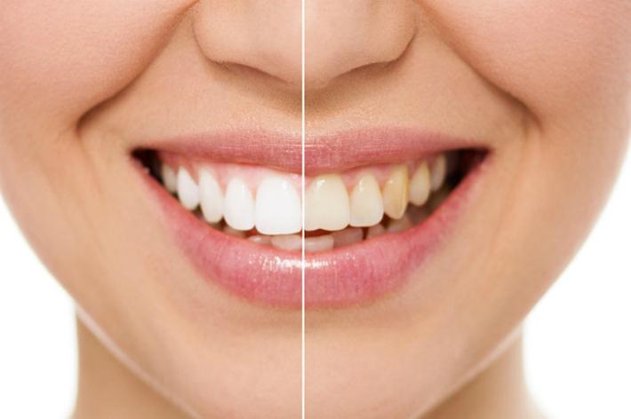 Что такое прямые или композитные виниры? Это способ недорого и быстро сделать зубы красивыми
