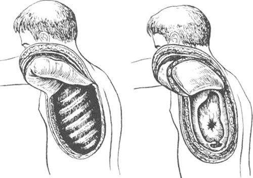 Особенности торакопластики по Шеде