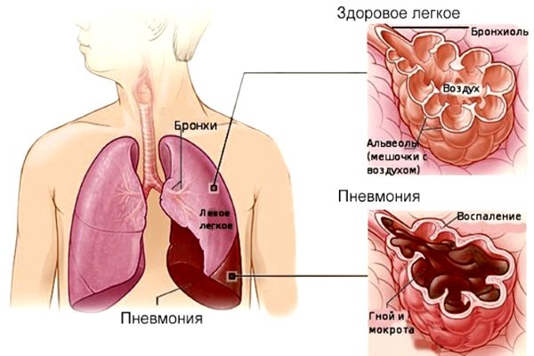 Легкое в норме и при пневмонии