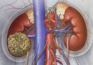 рак почки симптомы признаки у женщин