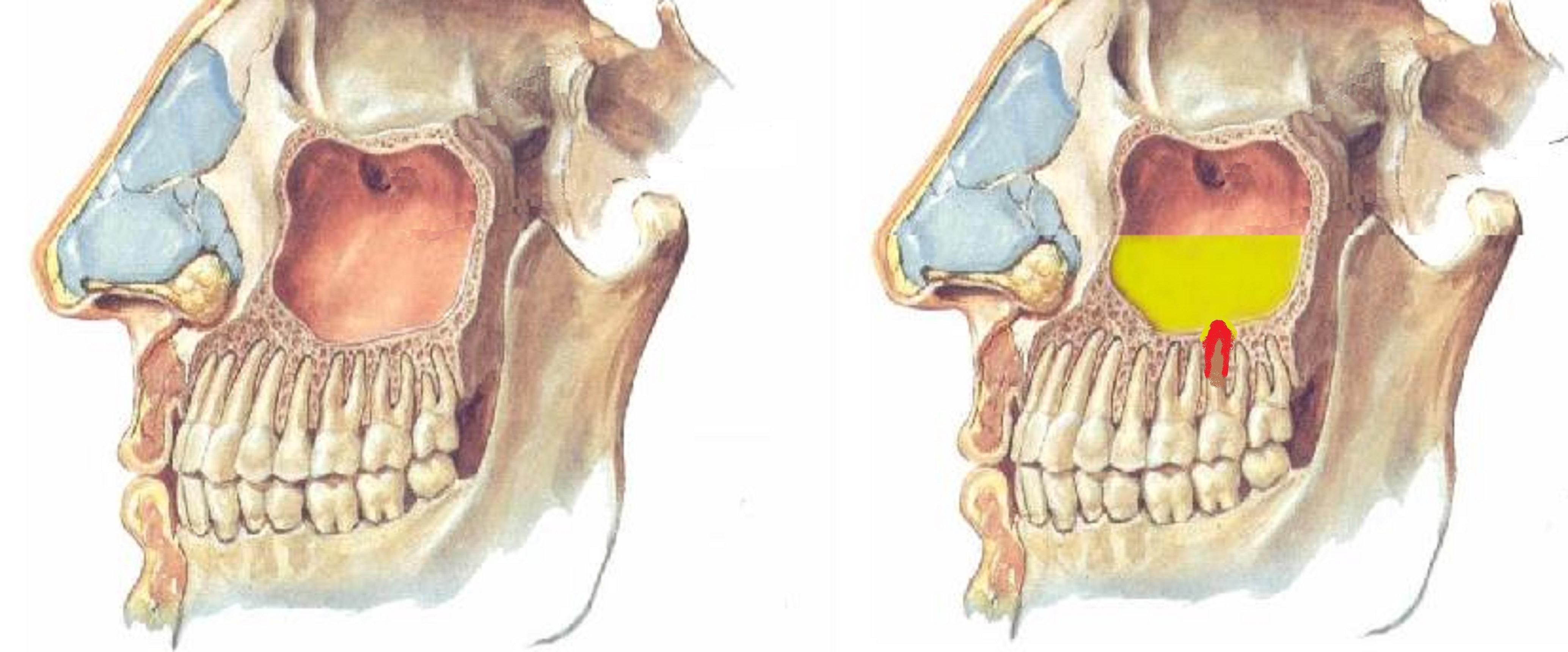 Симптомы кисты зуба в гайморовой пазухе. Насколько она опасна, и обязательно ли делать операцию