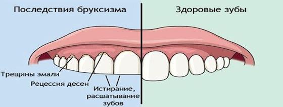 Выбираем средство, чтобы снять чувствительность зубов к горячему и холодному