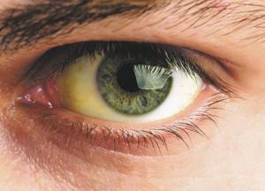 жёлтые белки глаз при желтухе