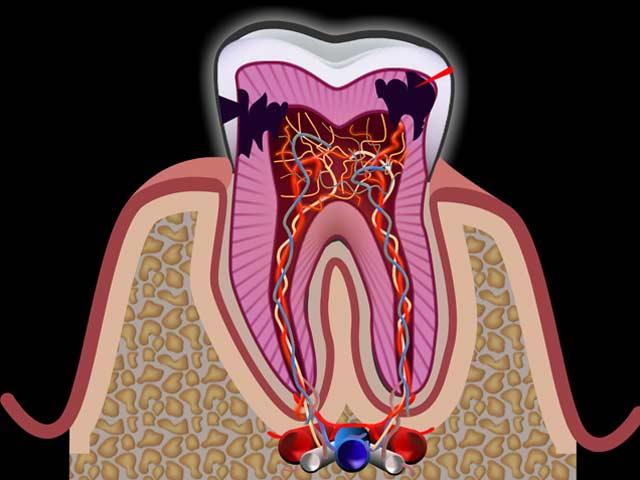 Что это, когда болят и ломят все зубы сразу? Как не стать беззубым