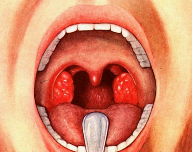 Герпетическая ангина и ее лечение