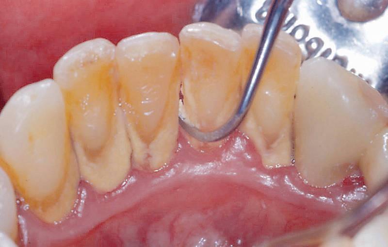 Через сколько времени после чистки зубов от камня можно кушать и курить. А чего делать категорически нелья