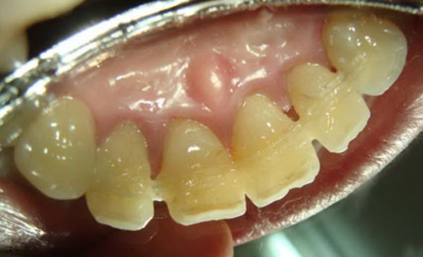 Зачем нужно шинирование зубов, и что это такое? Подвижные зубы больше не будут подвижными
