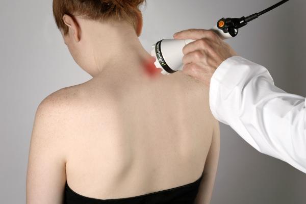Применение лазеротерапии в лечении остеохондроза