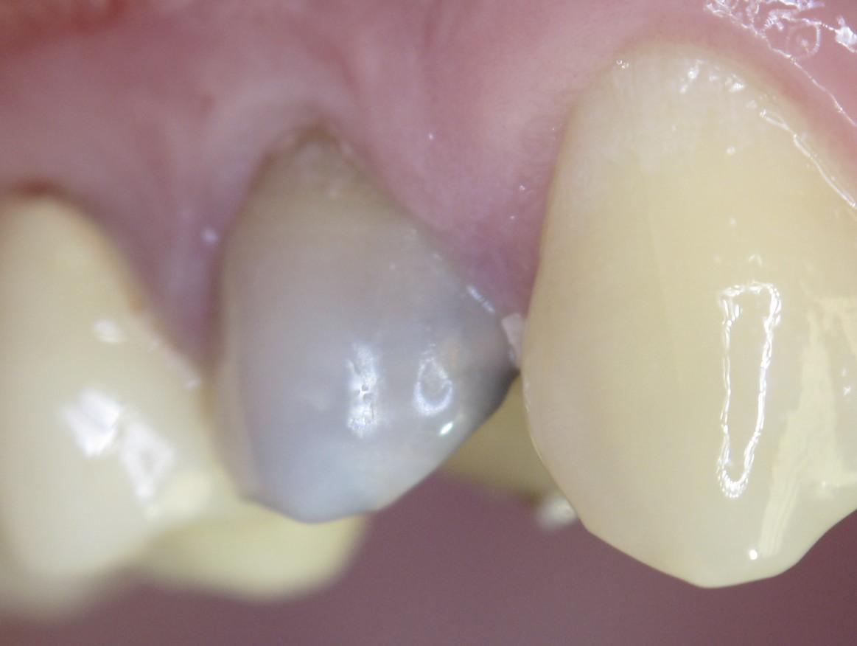 Что делать, если поставили мышьяк а зуб болит. Как избежать некроза