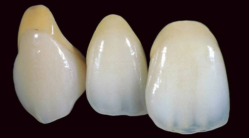 Как лечится кариес на передних зубах