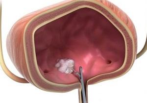 опухоль мочевого пузыря симптомы