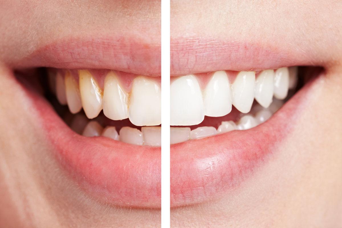 Выбираем лучший отбеливающий гель для зубов. Высокая эффективность не всегда безопасна