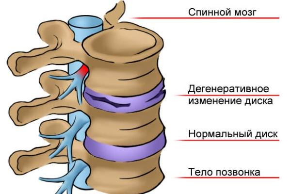 Межпозвонковый диск в норме и при остеохондрозе