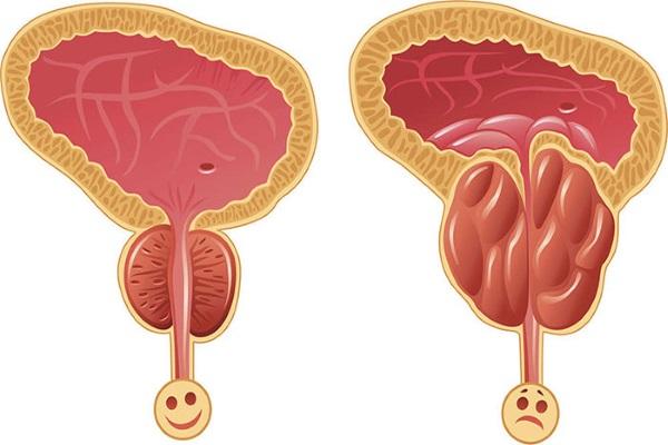 Простата в норме (слева), аденома простаты (справа)