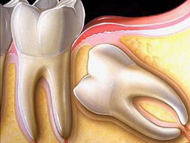 Как происходит удаление зуба мудрости, если он растет горизонтально и упирается в соседний зуб
