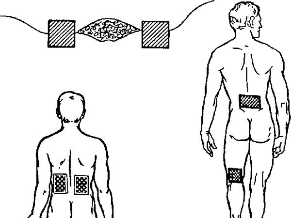 Расположение электродов при флюктуоризации очага воспаления