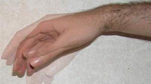 дрожащая кисть руки