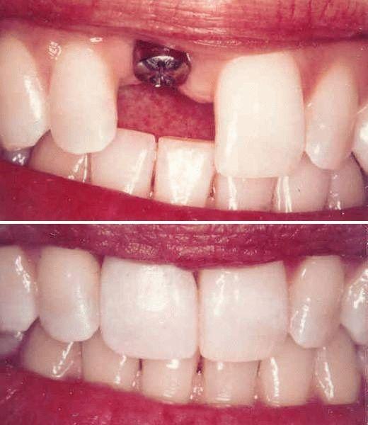 Как происходит имплантация передних зубов. Все этапы процедуры