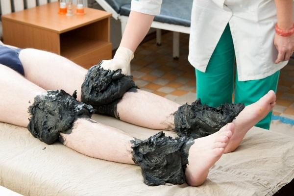 Грязевые аппликации на коленные и голеностопные суставы
