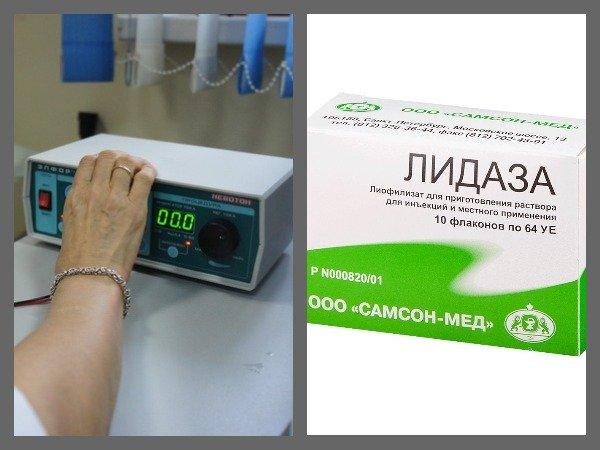 С помощью электрофореза лидаза доставляется непосредственно в патологический очаг