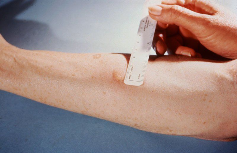Можно ли делать манту при кашле и почему он появляется после прививки