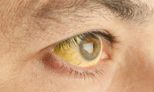При каких заболевания белки глаз становятся желтыми