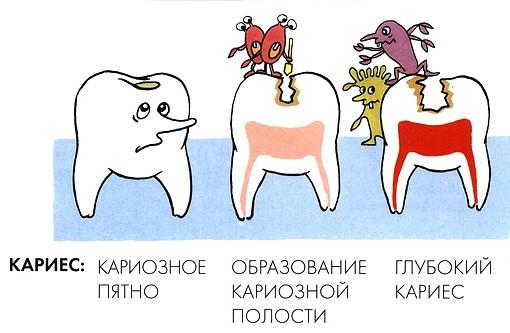 Правильное лечение молочных зубов у детей- главные аспекты