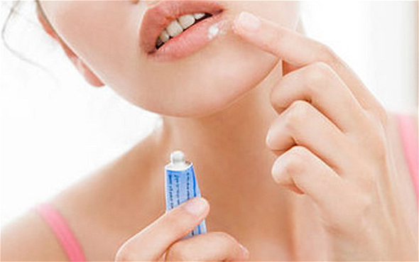 Лечение герпеса зубной пастой
