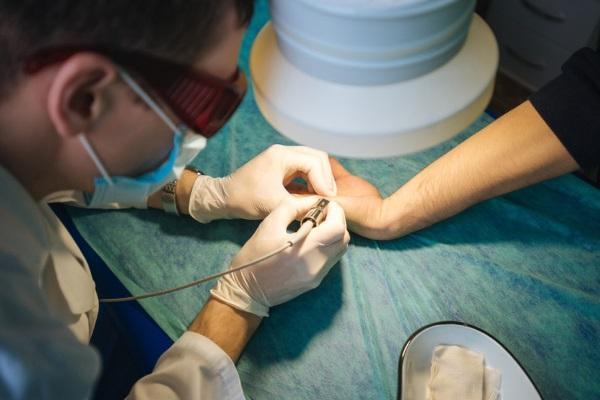 Удаление бородавки при помощи лазера