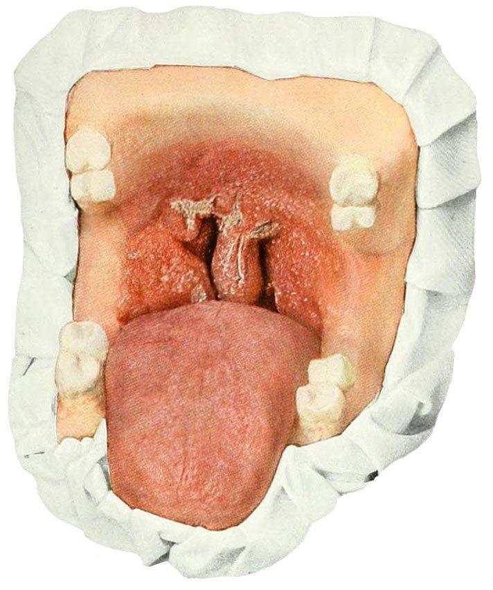 Схема туберкулеза ротовой полости