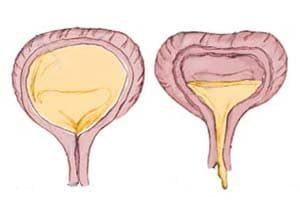 нейрогенный мочевой пузырь лечение