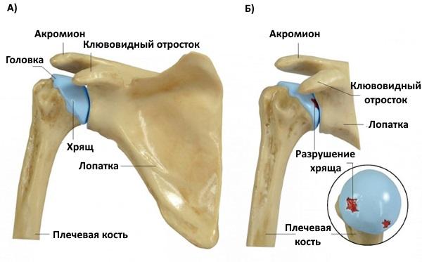 А) норма, Б) остеоартроз плечевого сустава