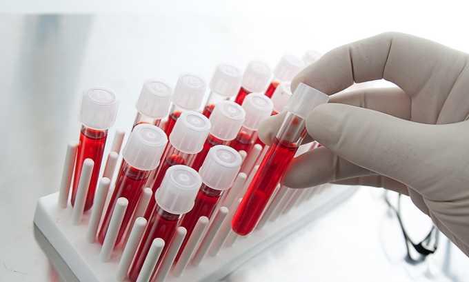 Общий и биохимический анализ крови при лечения острого панкреотиата