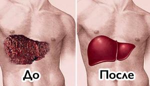 печень до и после лечения тиосульфатом натрия