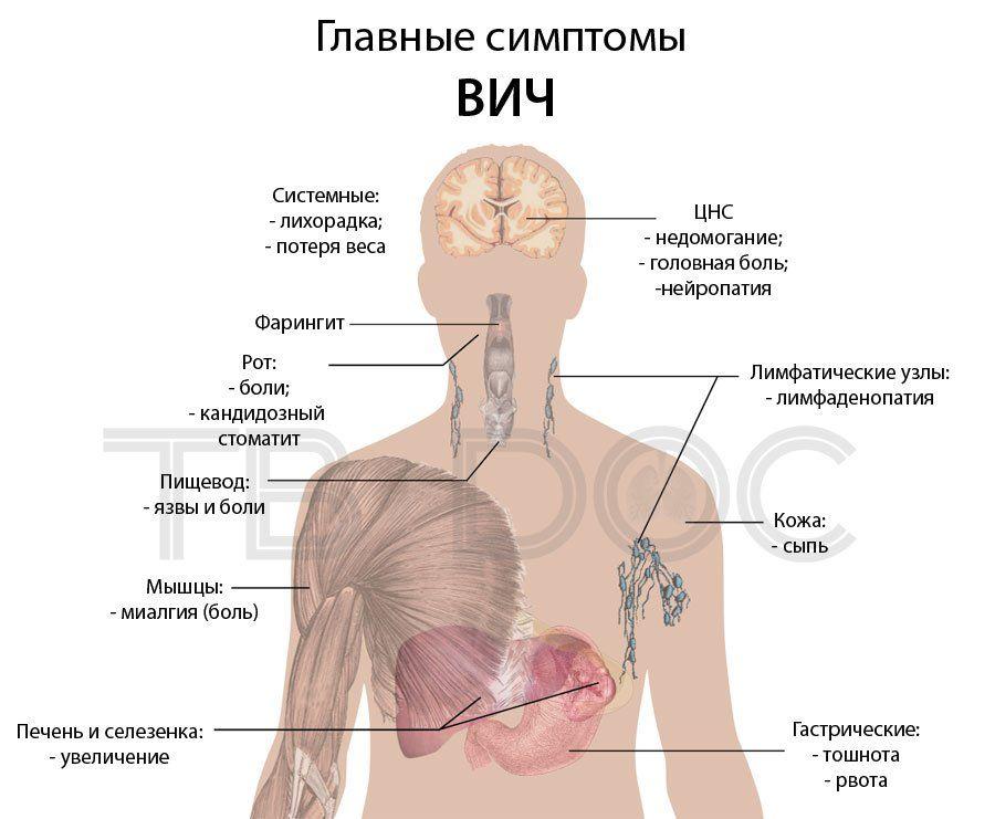 Главные симптомы ВИЧ-инфекции