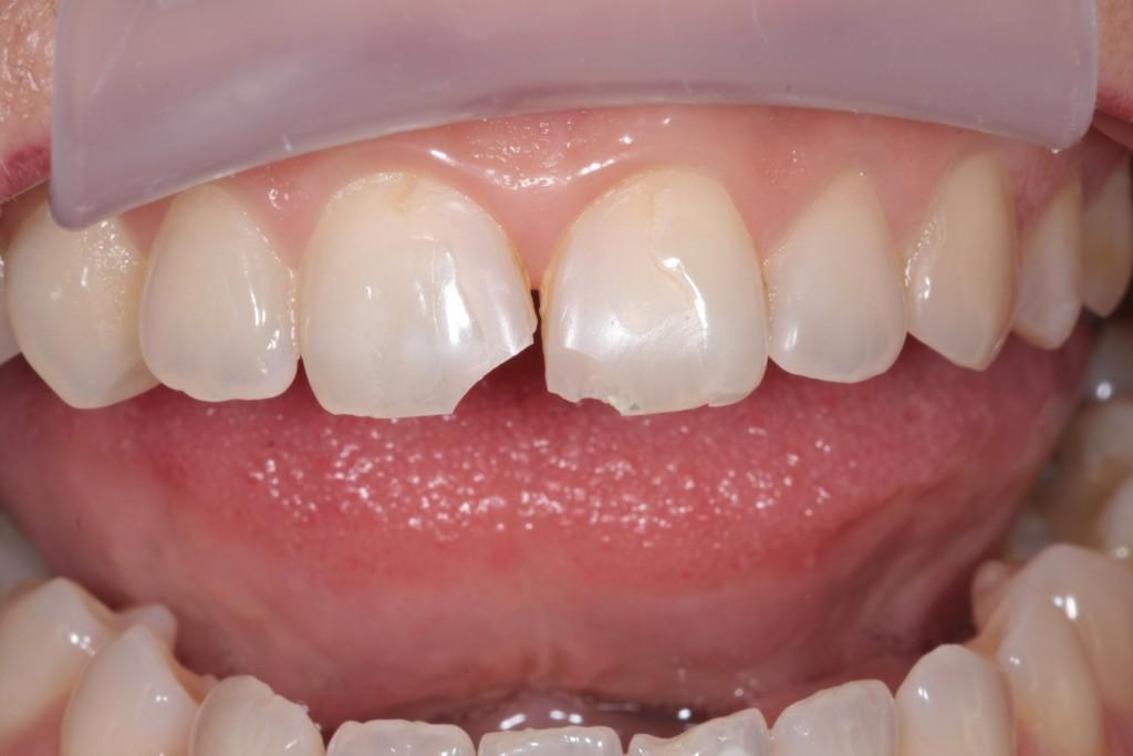 Преимущества и недостатки люминиров. От кривых зубов к голливудской улыбке