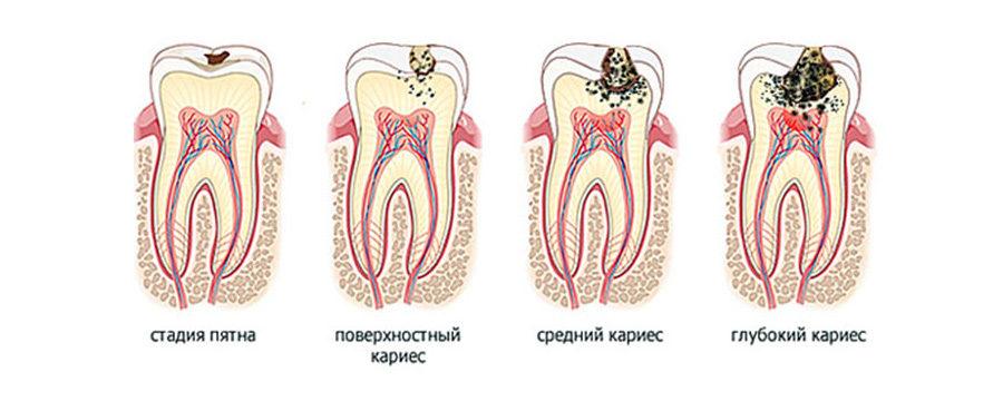 Симптомы пульпита и кариеса зуба мудрости. Лечить или удалять