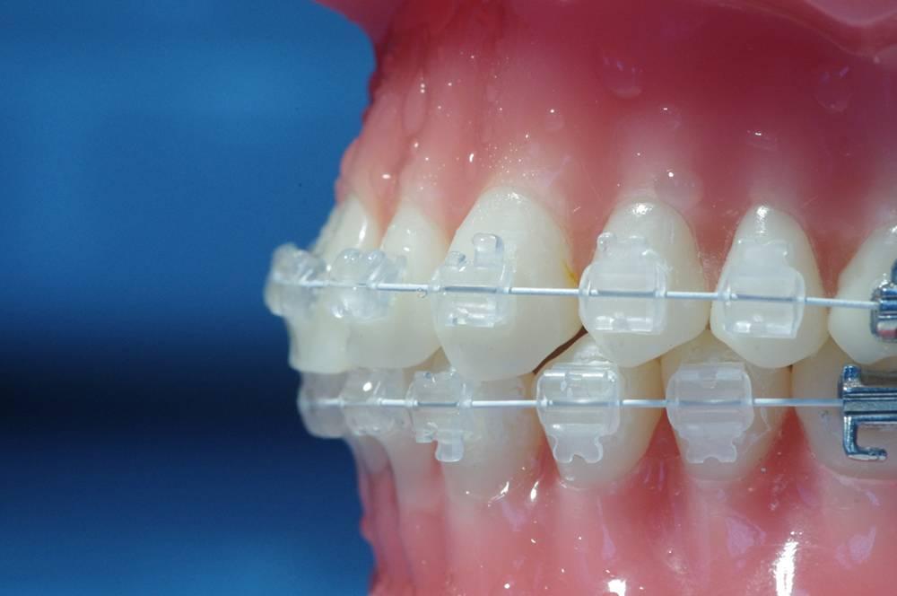 Как выбрать прозрачные брекеты на зубы? Плюсы и минусы систем из разных материалов