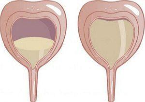 гиперактивный мочевой пузырь симптомы