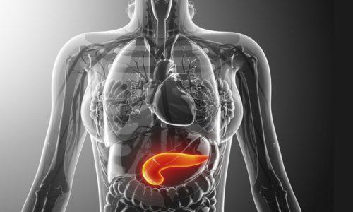 Рекомендации по острому панкреатиту даются исходя из его формы: классифицируется на легкий и тяжелый острый панкреатит